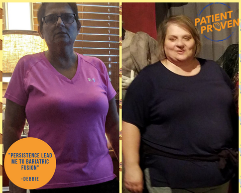 Bariatric Fusion Success