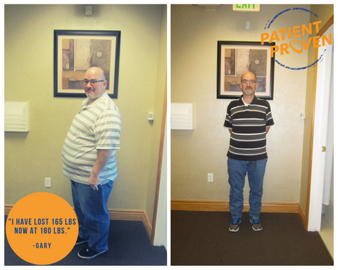 Bariatric Fusion Testimonial Success Story