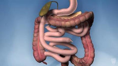 Conversion to Duodenal Switch