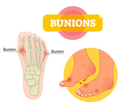 bunions foot pain misalignment