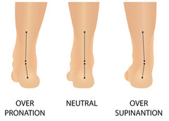 over pronation supination valgus varus foot pathology