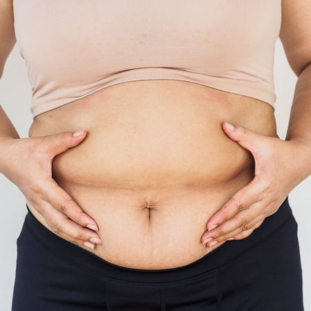Why We Gain Weight Around Our Stomach & How To Combat It