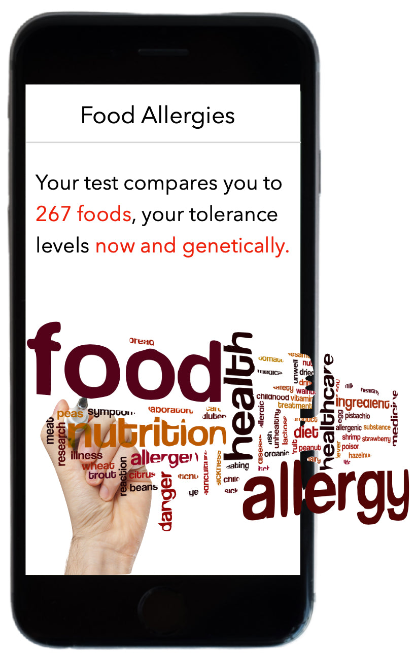 Food allergy testing shows your tolerance to 300 foods.
