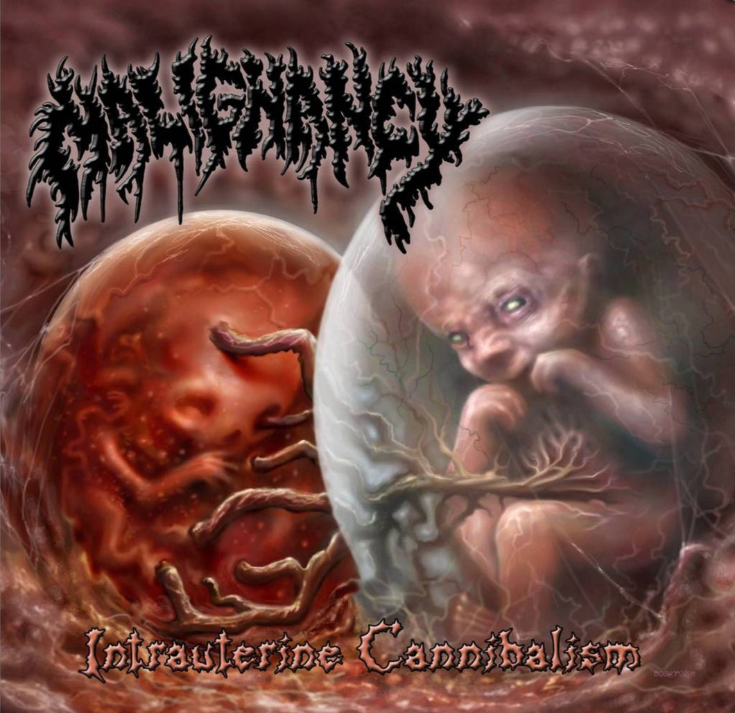 "Malignancy ""Intrauterine Cannibalism"" 2x CD"