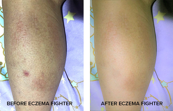 eczema fighter proof images