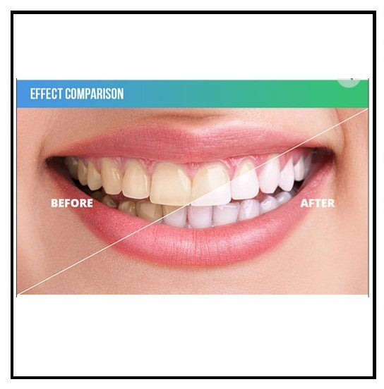 Innerlight Blue Teeth Whitening System Ph Miracle Products