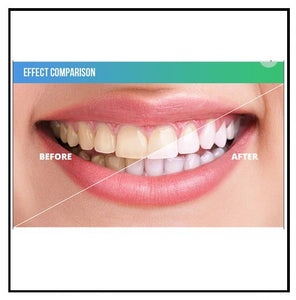 Innerlight Blue Teeth Whitening System