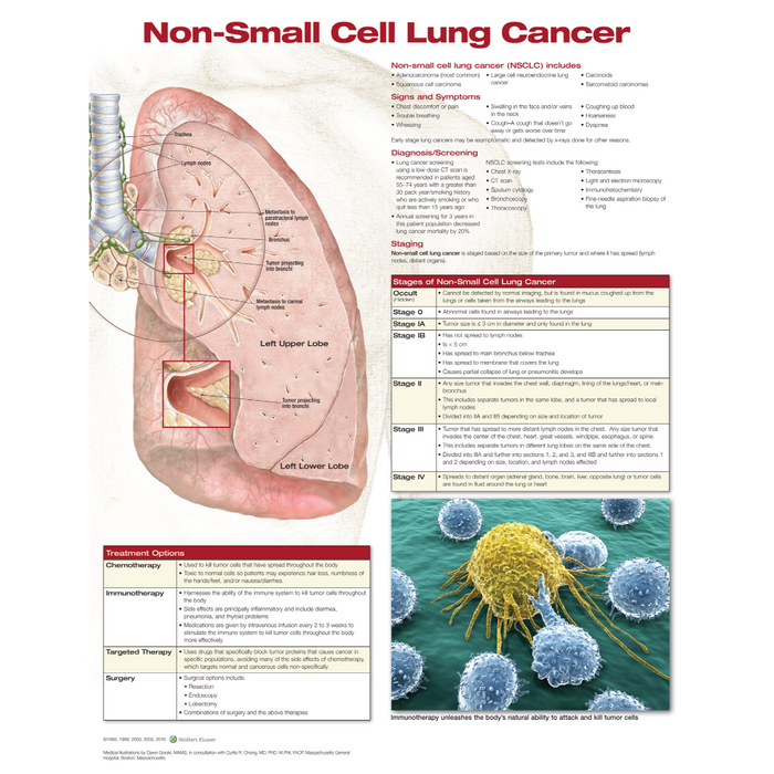Non Small Cell Lung Cancer Anatomical Chart