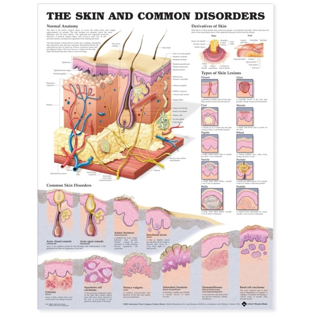 The Skin and Common Disorders Anatomical Chart