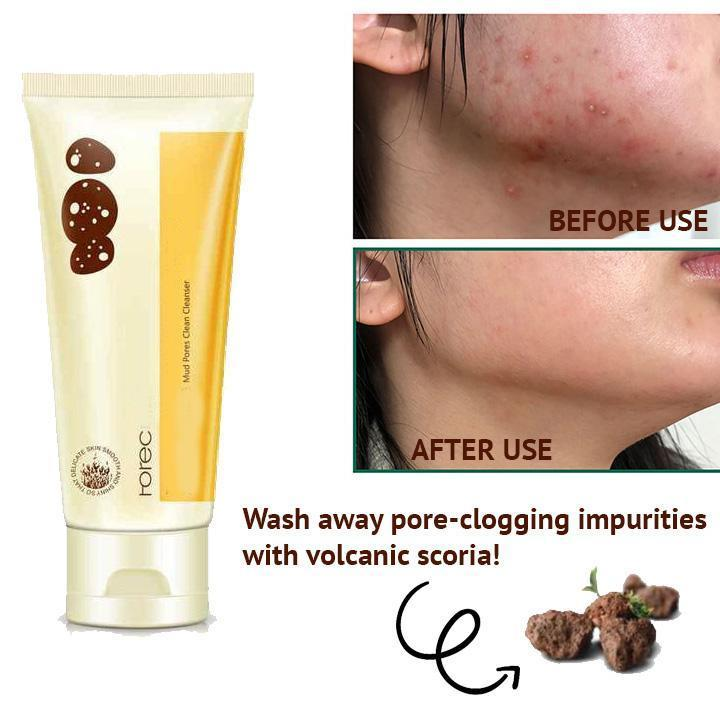 Pore Cleansing Volcanic Mud