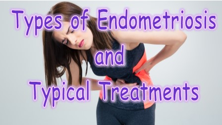 Types of Endometriosis and Typical Treatments
