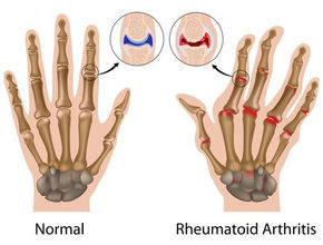 FAQs About Arthritis