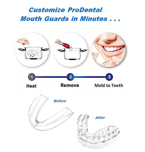 ProDental Thin and Trim Mouth Guard for Grinding Teeth – 3 Pack, Made in USA | Night Guard Stops Bruxism - Teeth Clenching | Use as Customizable Teeth Whitening Dental Guard | FDA Approved Material