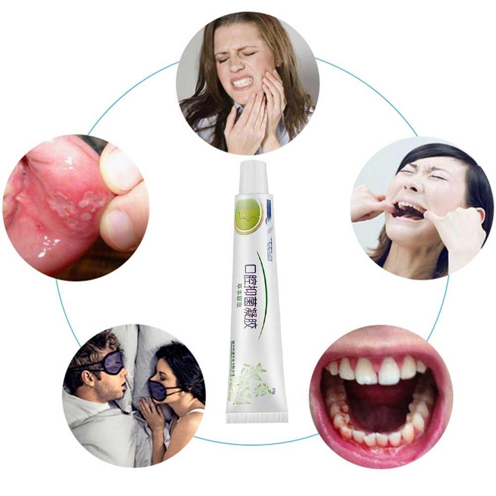 Oral Ulcers Treatment Mouth Ulcer Relief Mouth Care Fast Relief from Severe Pain & Irritation Antibacterial Cream