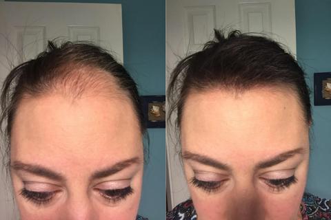 magical instant hairline concealer customer result
