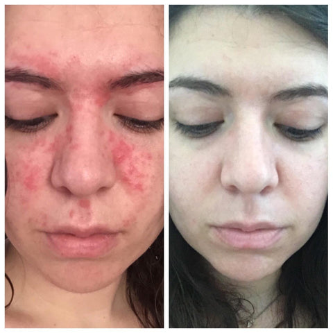 psoriasis soap result