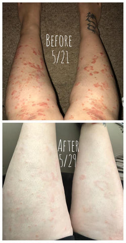 psoriasis soap review
