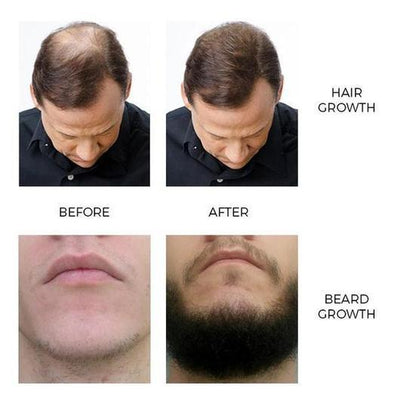 Authentic Andrea Hair and Beard Growth Essence