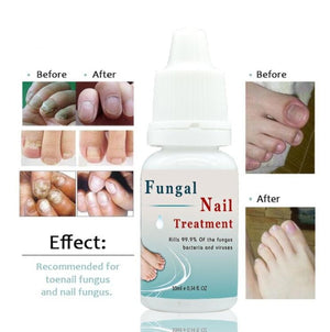 Nail Care Treatment