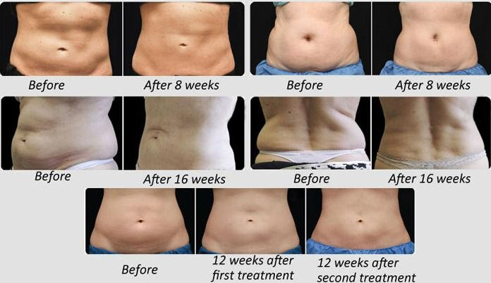 Lipo Cavitation, a Safe and Effective way to Trim Down your Belly