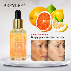 Best Vitamin C Serum | Face Whitening | Brighten Skin | Fade Dark Spots | Remove Freckles | Dark Circle Remover