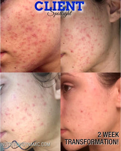 Acne Like Rash?