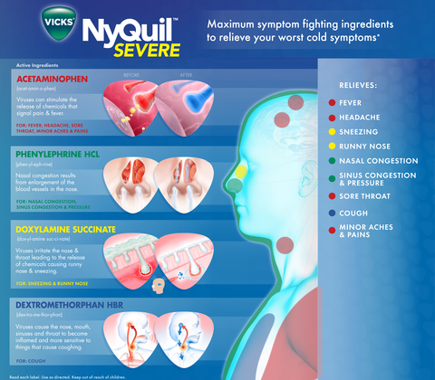 NyQuil Severe, Cold & Flu - Single Pack Blister