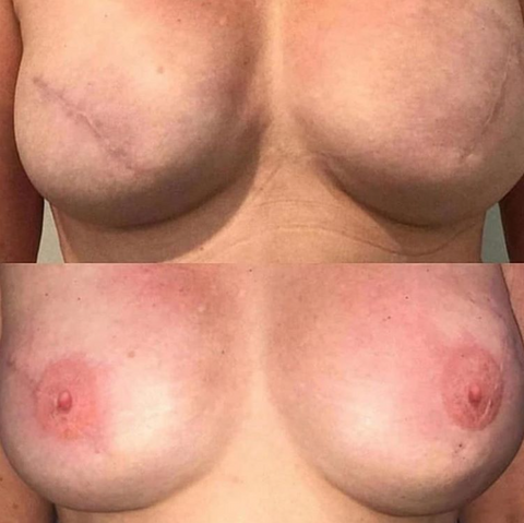 3D Areola Reconstruction Tattooing