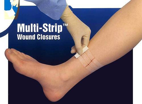 WOUND CLOSURE STRIPS 6MM x 75MM MULTI-STRIPS (PKT OF 3 STRIPS) x 2