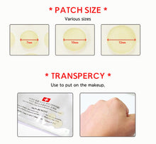 Load image into Gallery viewer, Acne Pimple Master 24 patches