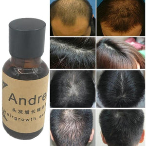 Andrea Hair Growth Essence - Ginger oil - My Lifestyle Stores