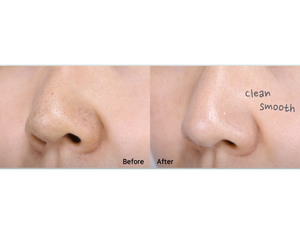 Before & after using MAMONDE Pore Clean Blackhead Stick