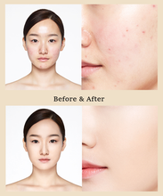 Cargar imagen en el visor de la galería, Before and after using IOPE Perfect Cover Cushion | K-Beauty Blossom USA