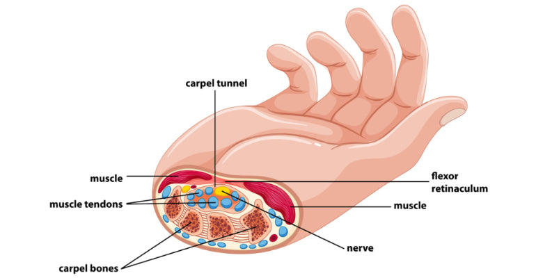 carpet tunnel syndrome - https://aqfsports.com