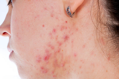 Top 9 Ways to Prevent Acne Breakouts (from Guest Blogger Samantha Pope-Cubillos)