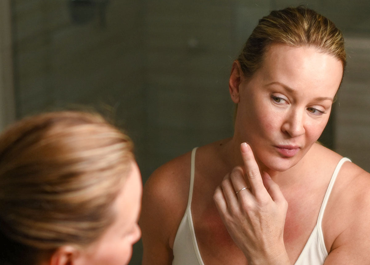 Lady checking skin for blemishes