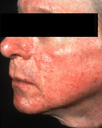 Rosacea - What are the causes?