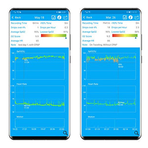 LOOKEE Ring Overnight Oxygen Monitor Tracker with APP Report for Insight...