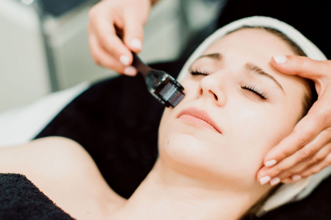 Microneedling: Was kann der Beauty-Trend?