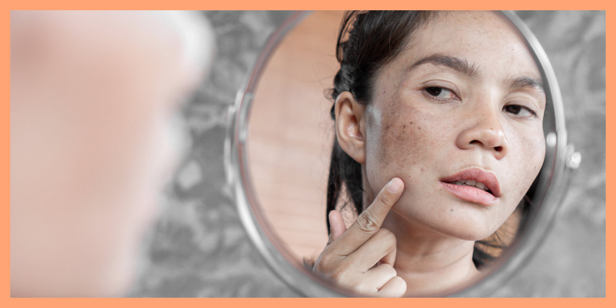 Hyperpigmentation 101: Understanding and Fading Dark Spots and Melasma