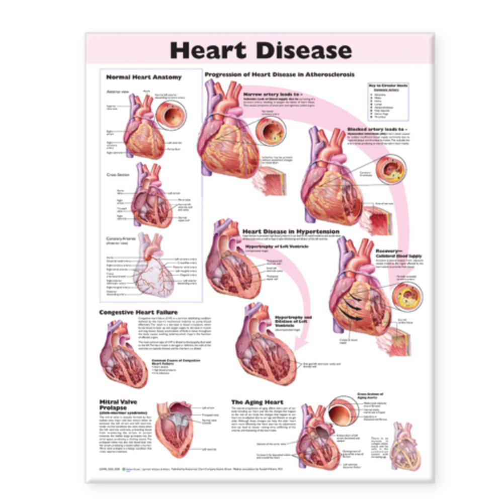 Heart Disease Anatomical Chart