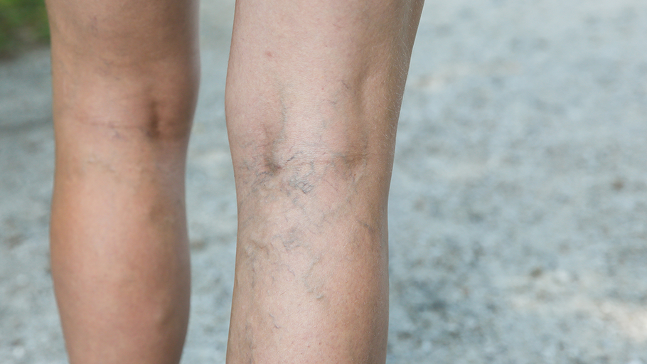 Using Compression Stockings for Deep Vein Thrombosis
