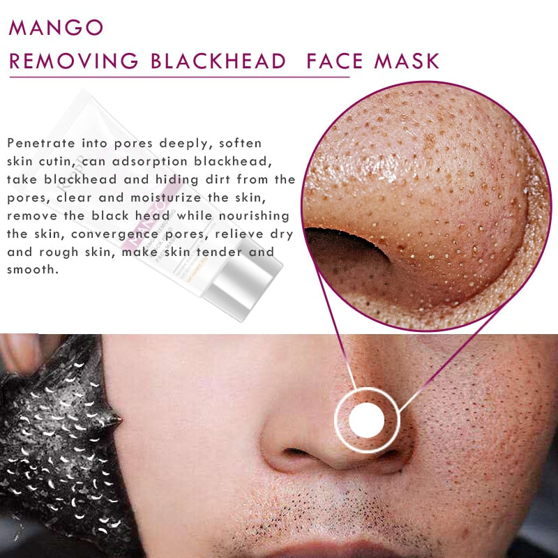 Blackhead Remover Treatment