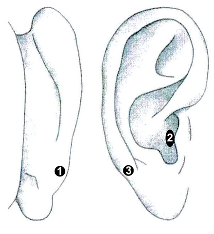 Tragus or cymba conchae? Investigating the anatomical foundation of transcutaneous auricular vagus nerve stimulation (taVNS). Citation: (Badran, 2018)