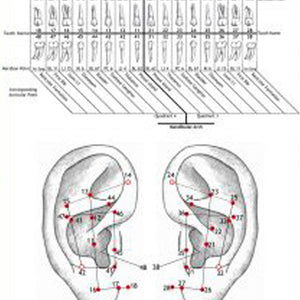 Ear Wall Chart of Teeth and their Corresponding Auricular Points