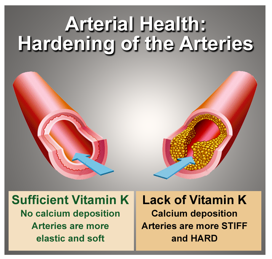 hardening of the arteries