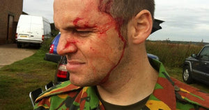 Eye Injuries in Airsoft & Paintballing! How can you protect your eyes while playing sport?