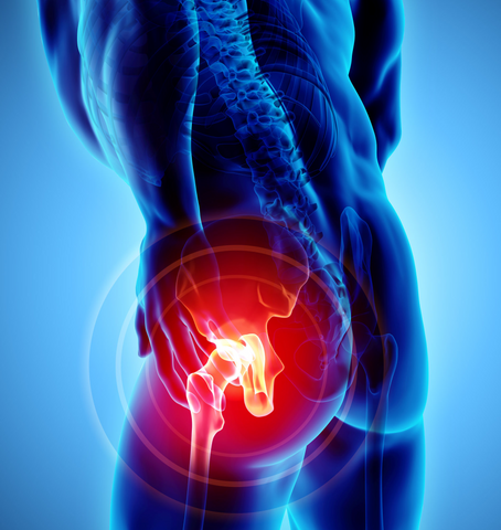 Chiropractor For Hip Pain
