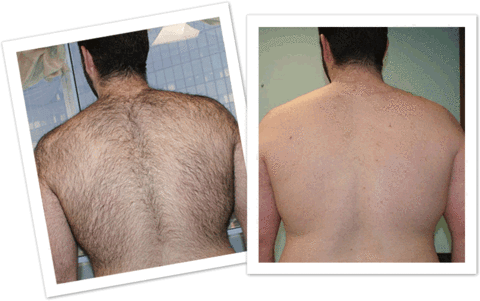 SprayAway Quick Hair Removal Solution