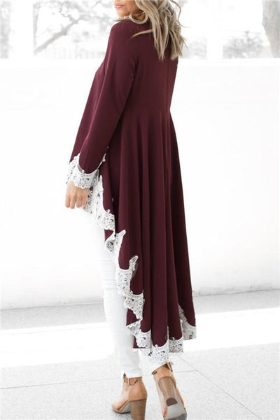 Irregular Lace Splicing Dress Top - ezcute